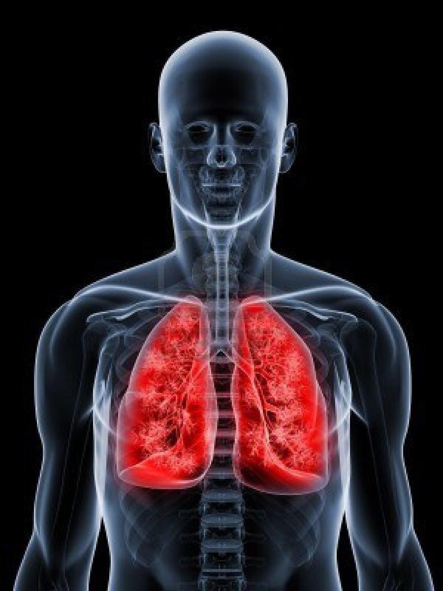 Bronquite Aguda