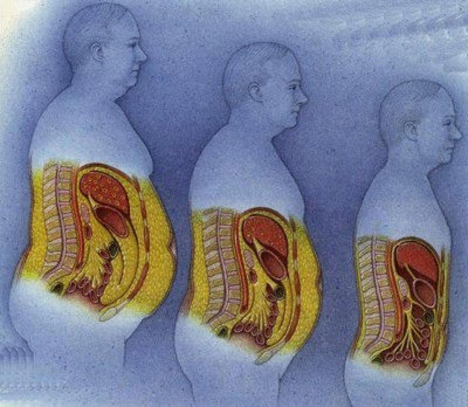 Câncer de Intestino Grosso (cólon)