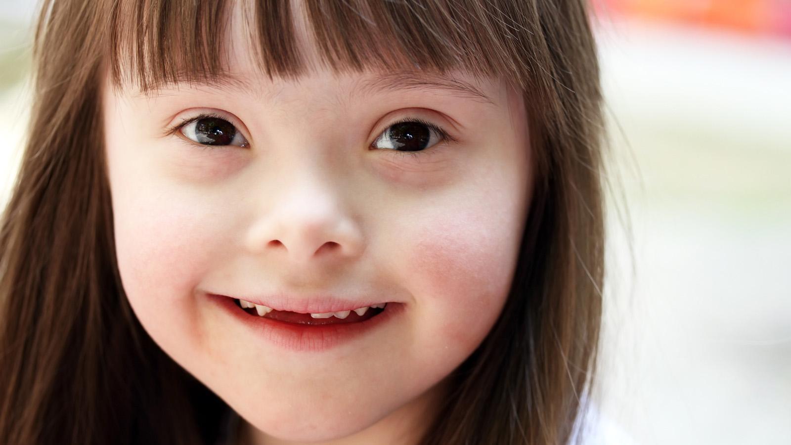 Síndrome de Down ou Trissomia 21