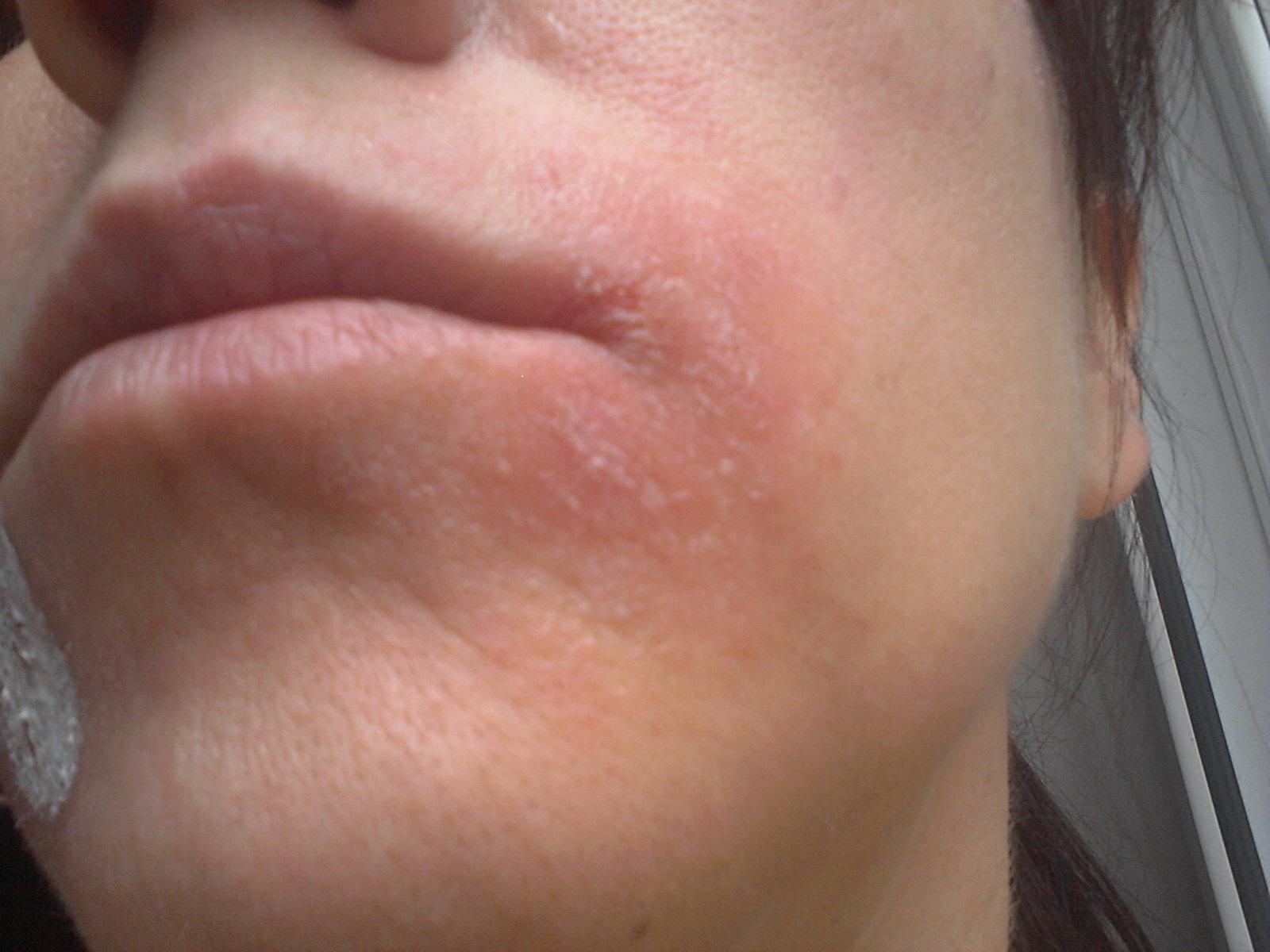 Eczema ou Dermatose
