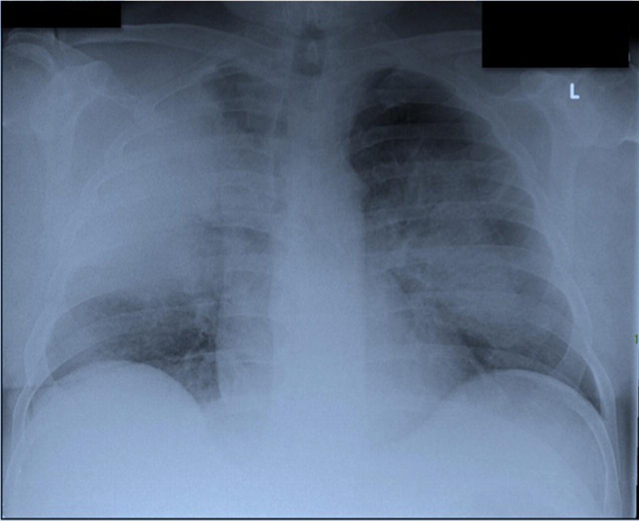 Pneumonia Por Legionella
