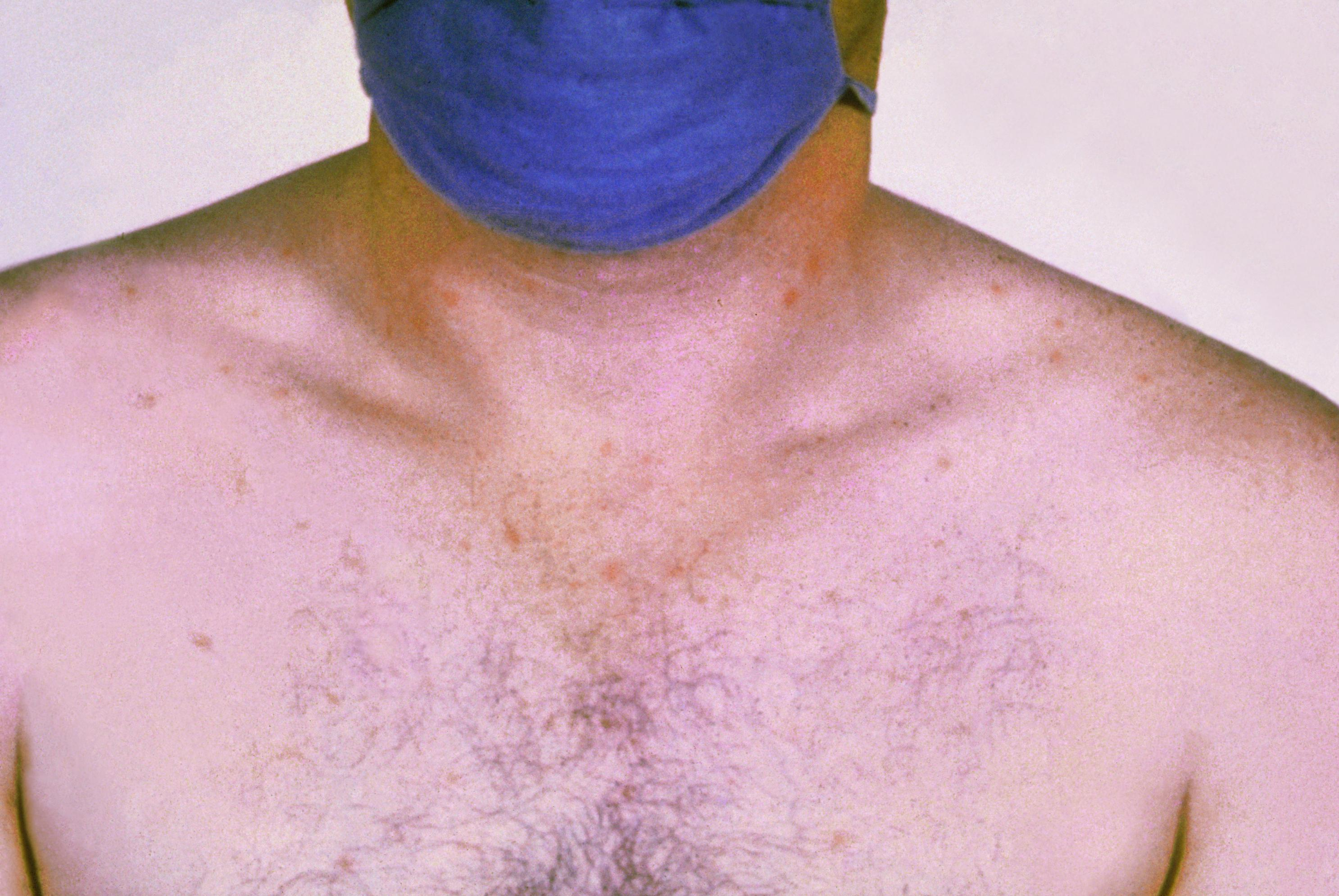 Vacina Contra A Febre Tifoide (oral)