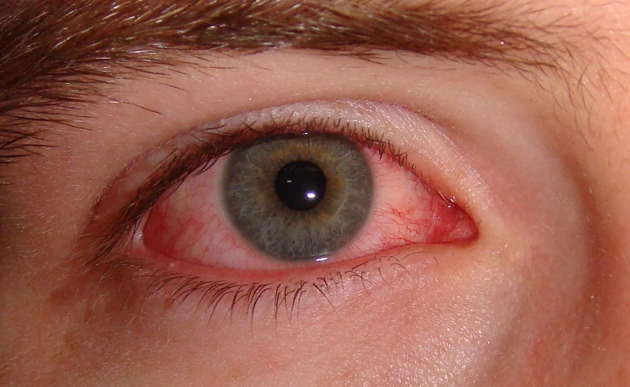 Neomicina, Polimixina B e Gramicidina (Oftálmico)