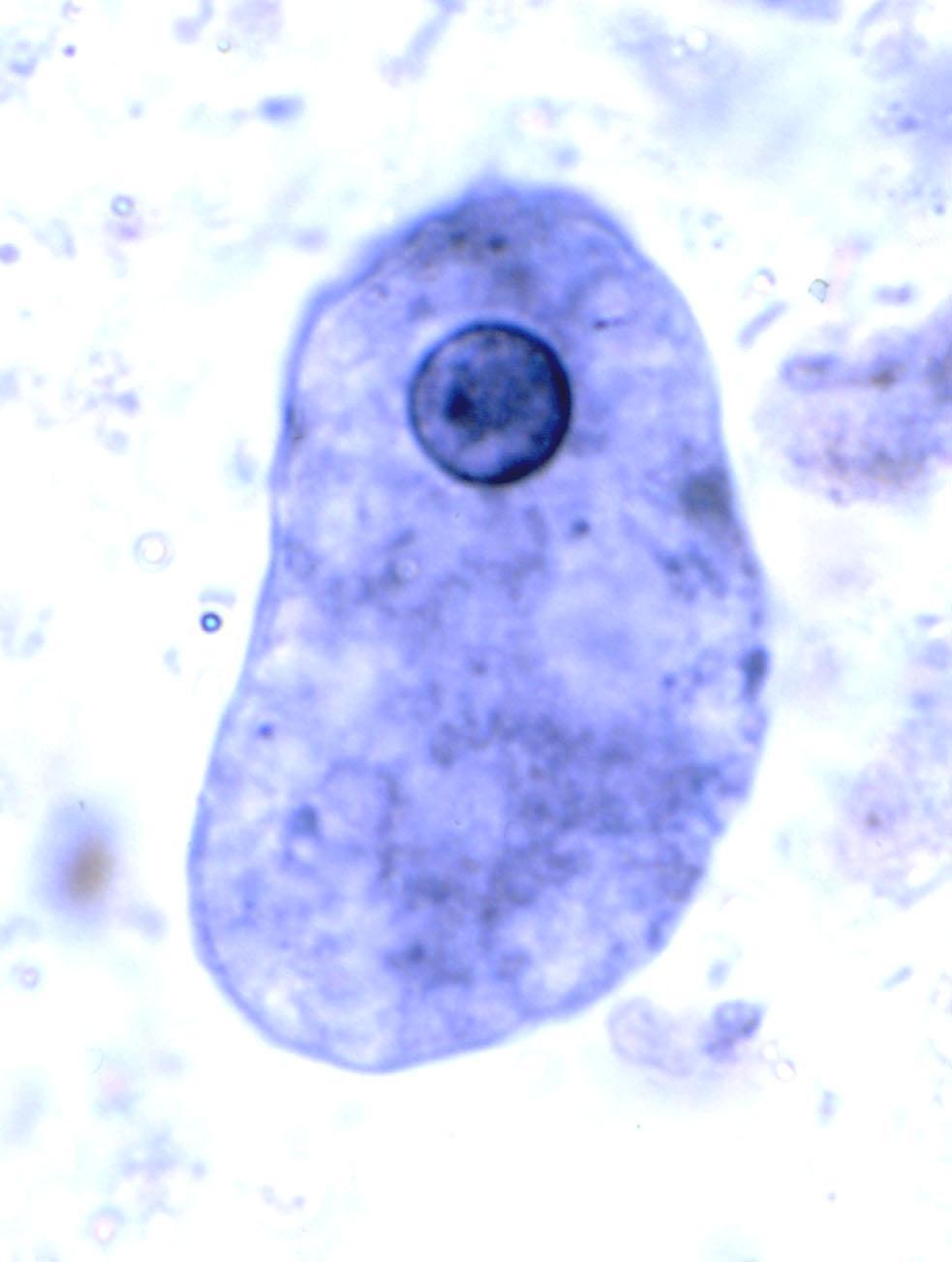 Oxamniquina (Oral)