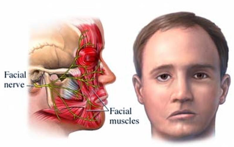 O que é o nervo facial