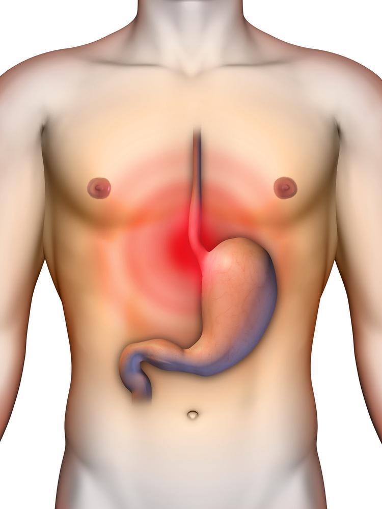 Refluxo Gastroesofágico