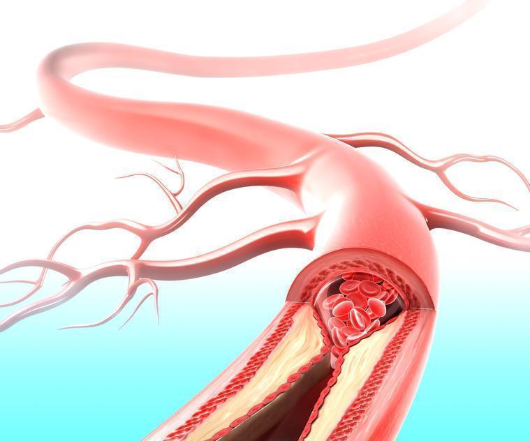Temporal Arterites