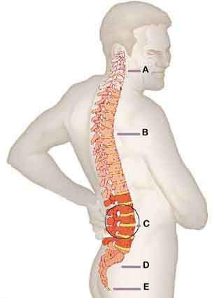 Traumatismo na Coluna Vertebral