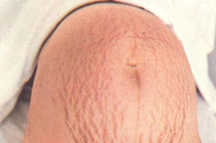O bom unguento de pigmentary nota em um corpo