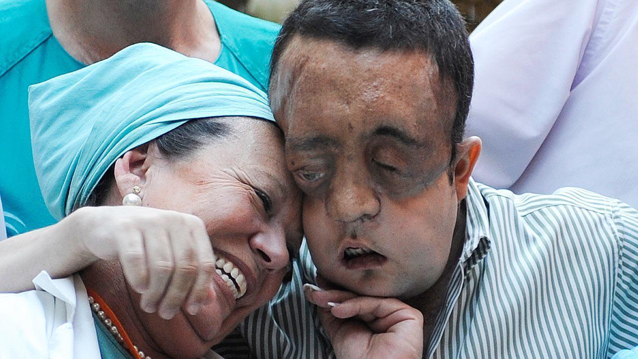 Rafael Aparece em Público Após Transplante de Rosto