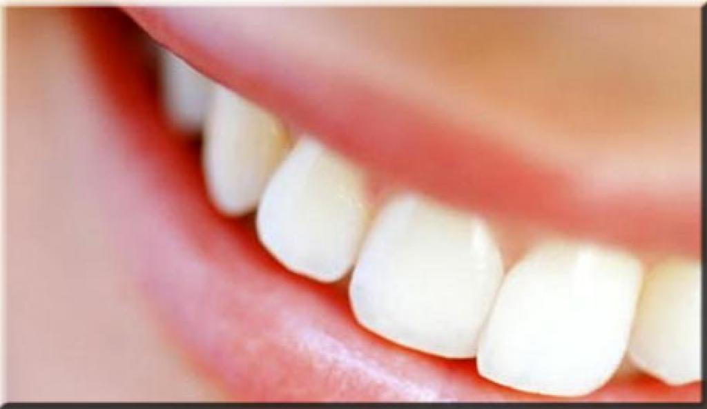 Alinhamento dos dentes