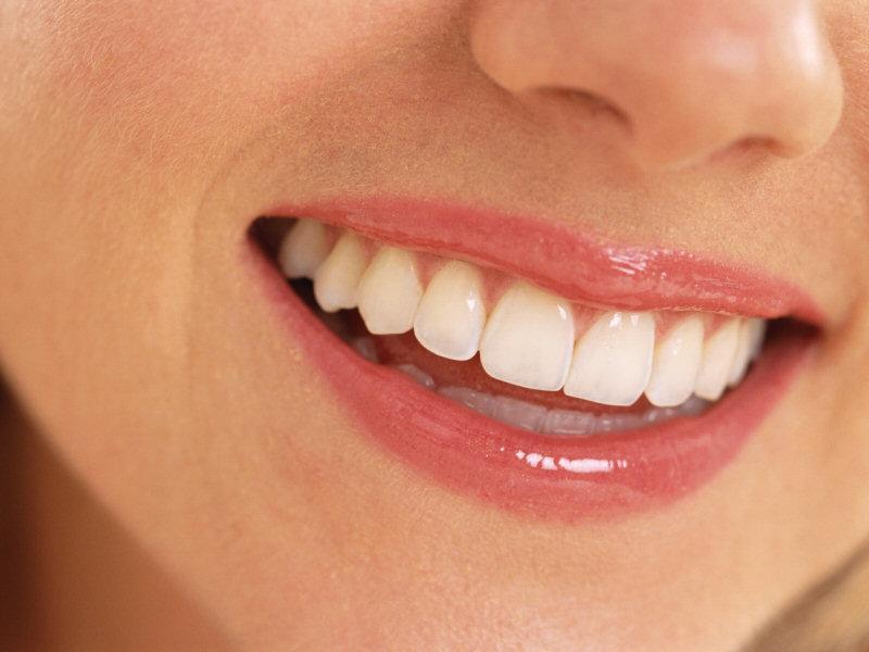 Alongar os dentes pode causar sérios danos