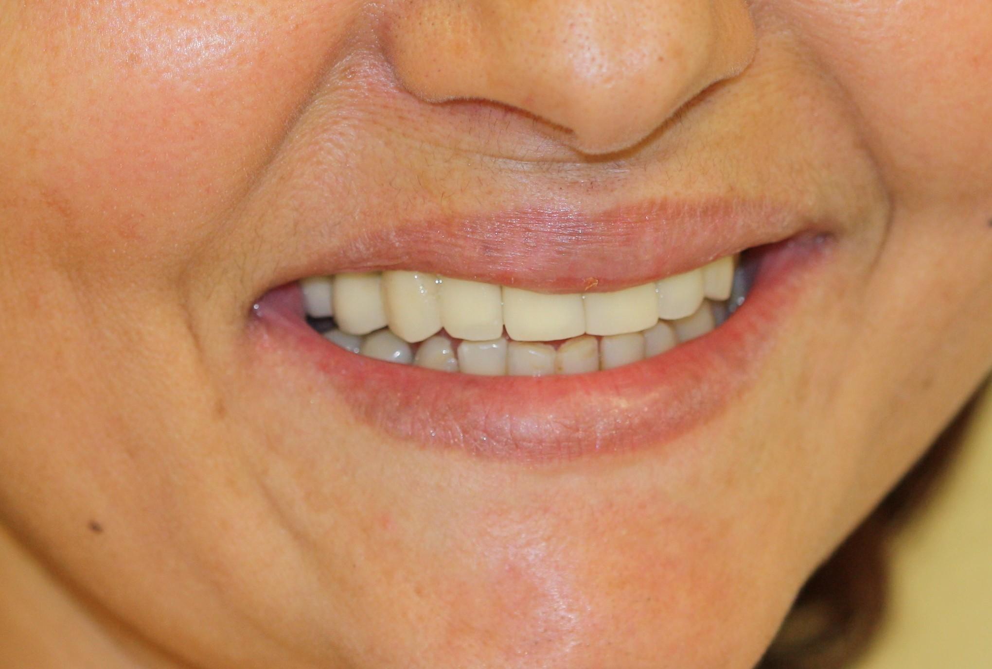 Implantes: Dentes Para Toda Vida