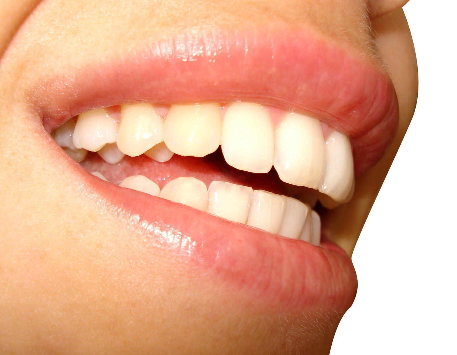 Manchas Dentais