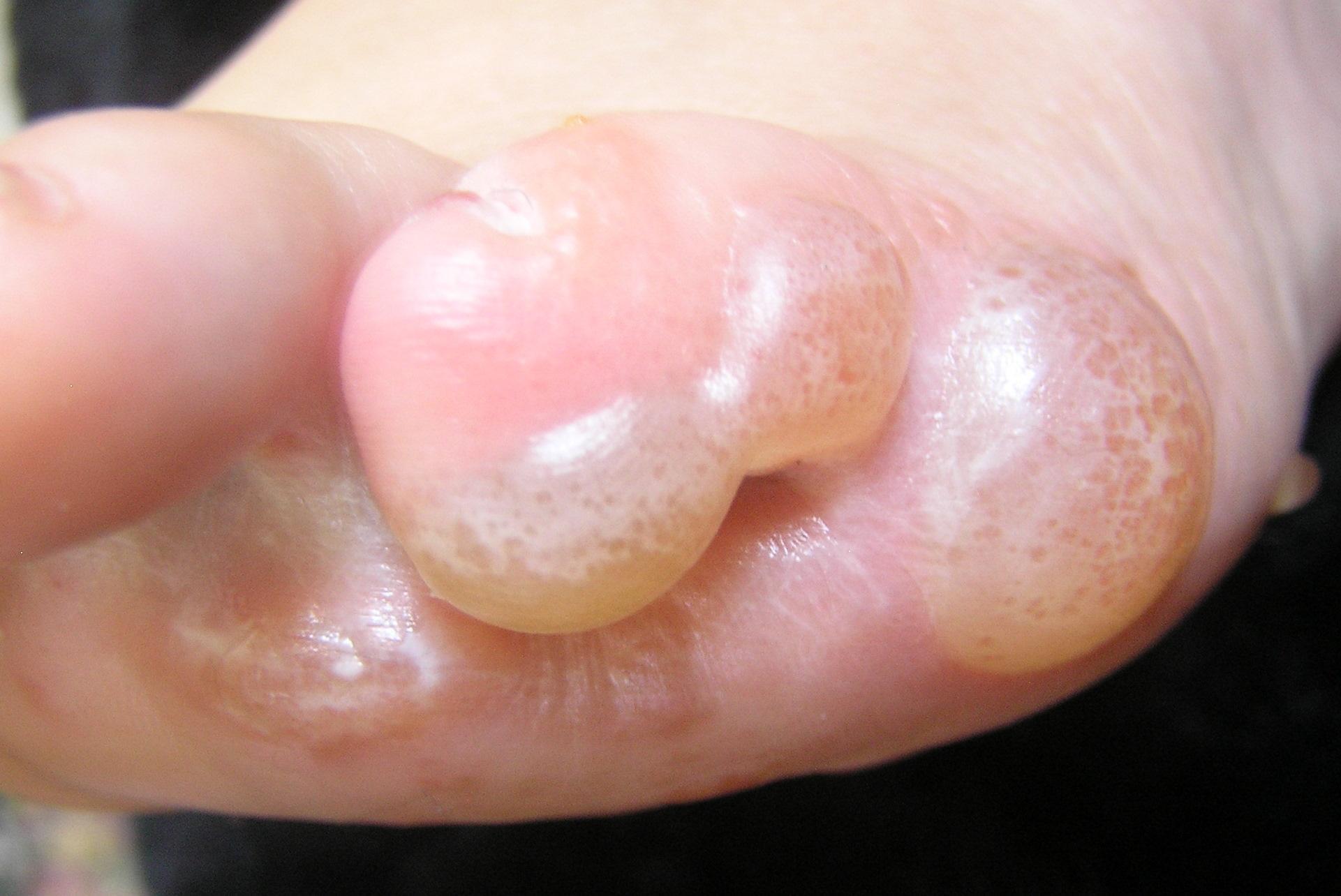 Tratamento de Eczema Atópico
