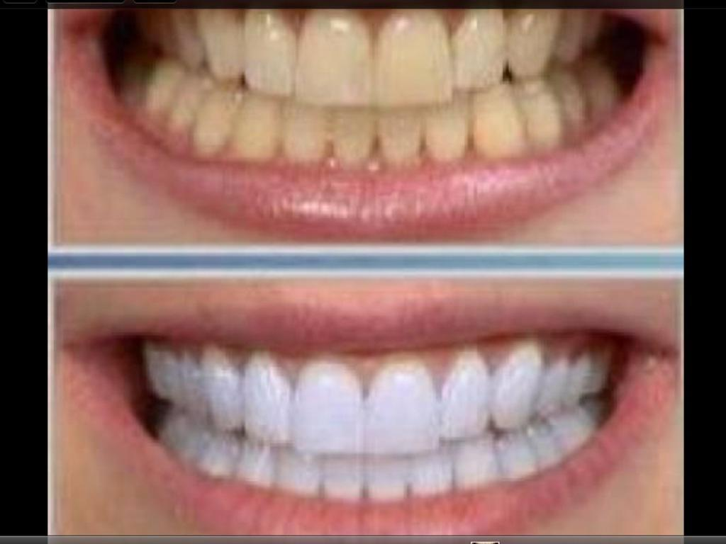Branqueamento Dental Tratamento do Canal Radicular