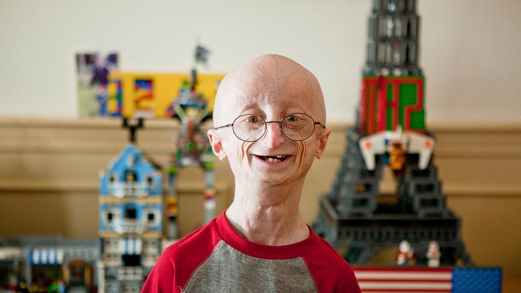 Progeria, a Doença que Envelhece