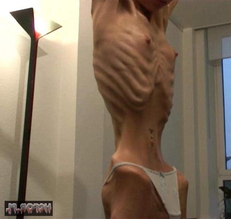 A Anorexia Cresce Entre os Adultos