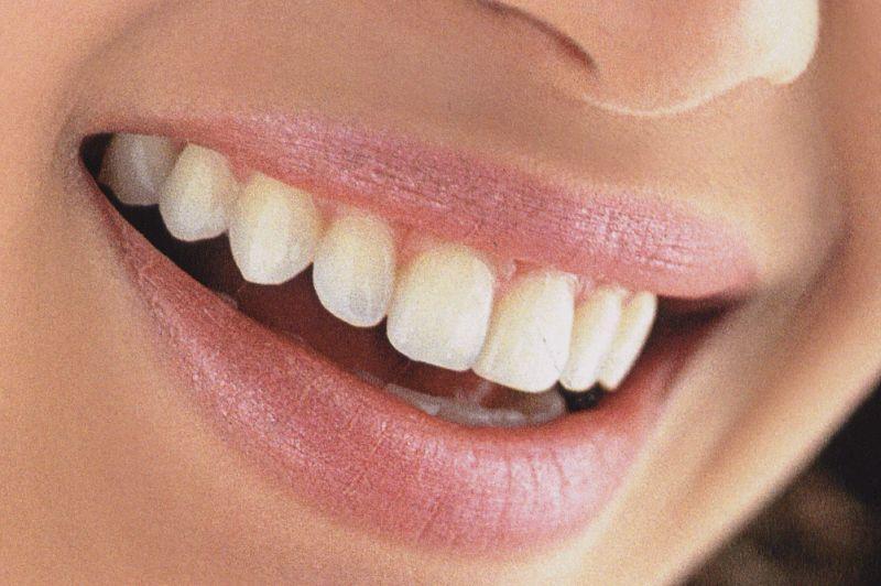 Mancha Nos Dentes: Alimentos Que Mancham os Dentes