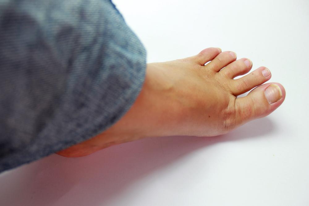 Mau Cheiro do pé – Dicas Para Combater Odor do Pé (Chulé)