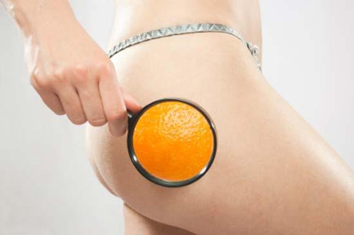 Alimentos Contra Celulite – Quais Alimentos Evitar se Você Tem Celulite