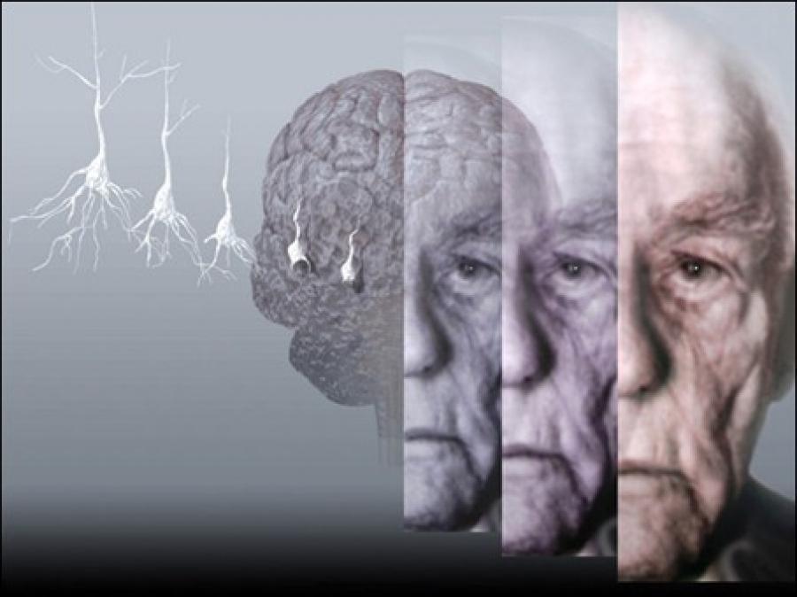 Alzheimer: Sinais de Alerta Para Doença de Alzheimer