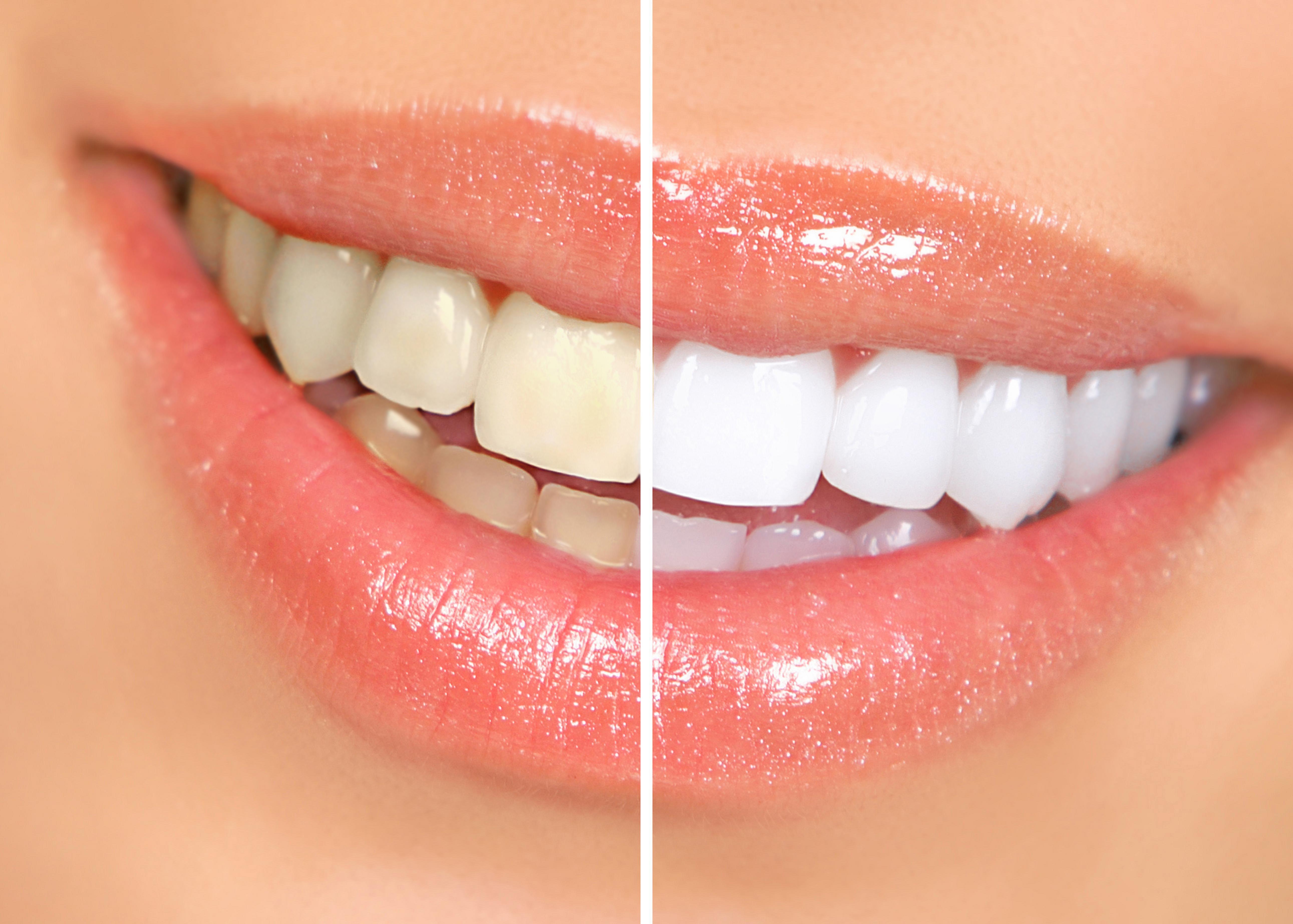 Clareamento Dental – Técnicas de Clareamento Dental
