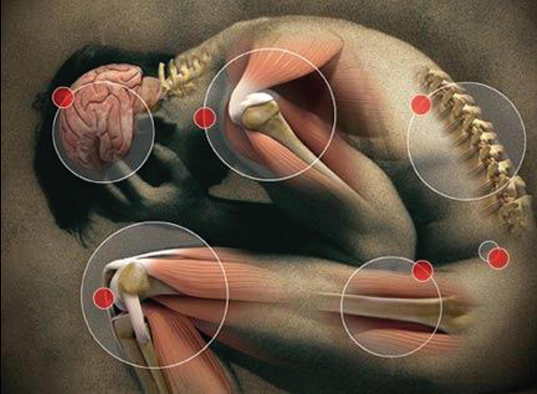 Fibromialgia – A Máxima Expressão da Dor Fibromialgia