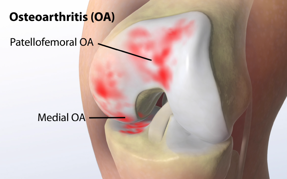 Osteoartrite ou Artrose: Infusões Para Reduzir a Osteoartrite
