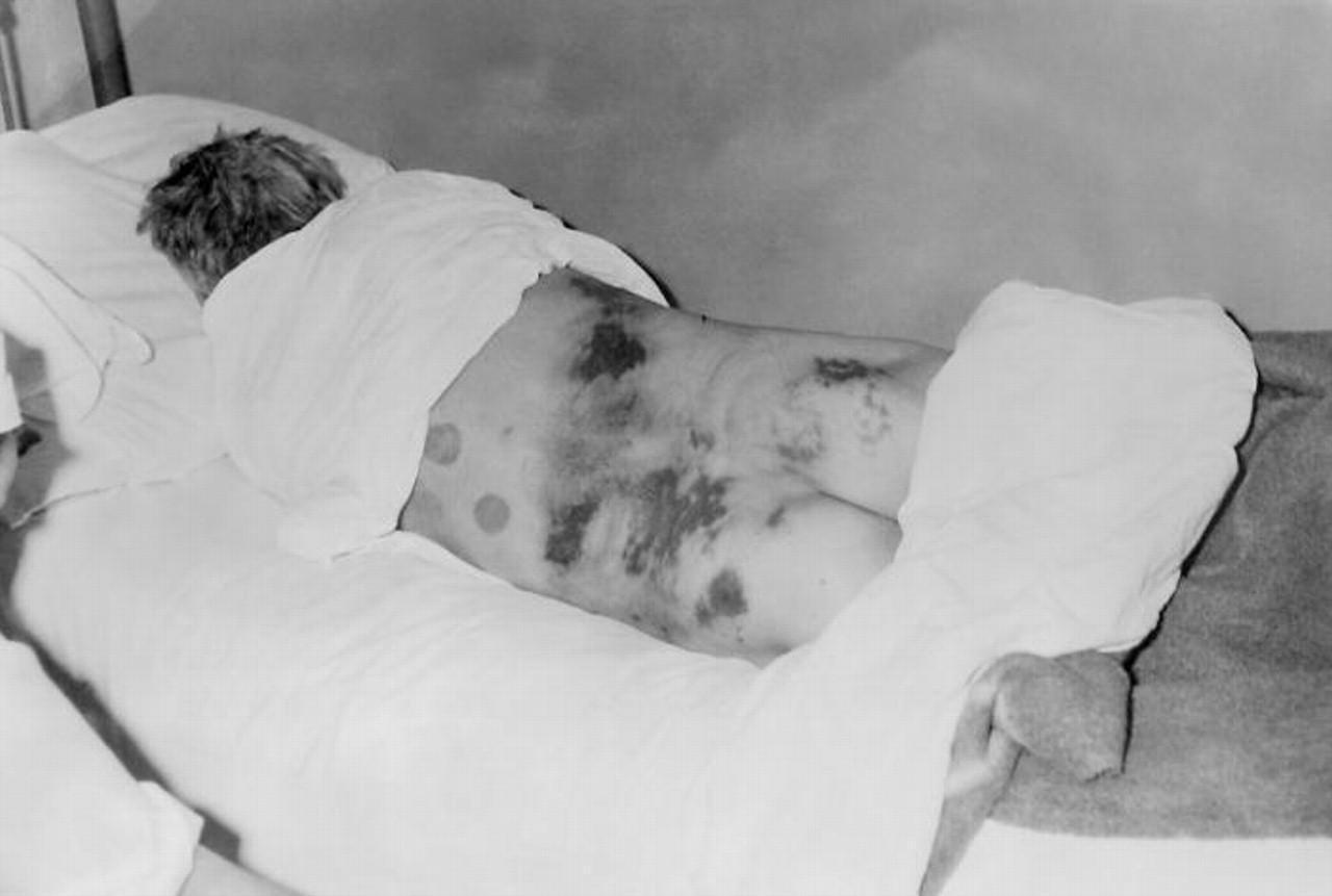 Febre Hemorrágica – Sintomas e Tratamento de Febre Hemorrágica