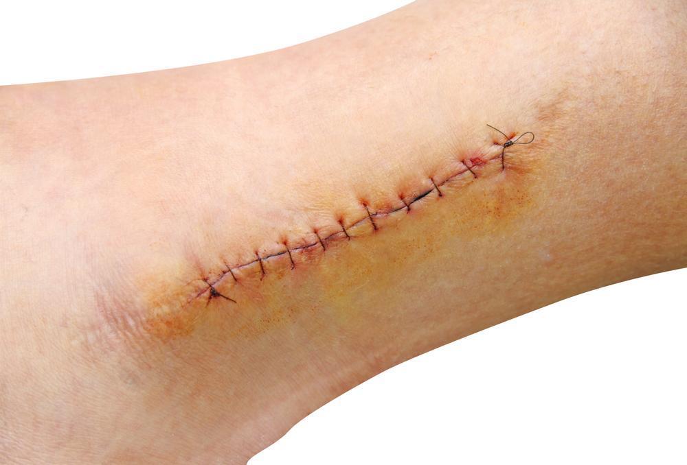Acelerar a Cicatrização – Remédios Caseiros para Ajudar a Cicatrizar
