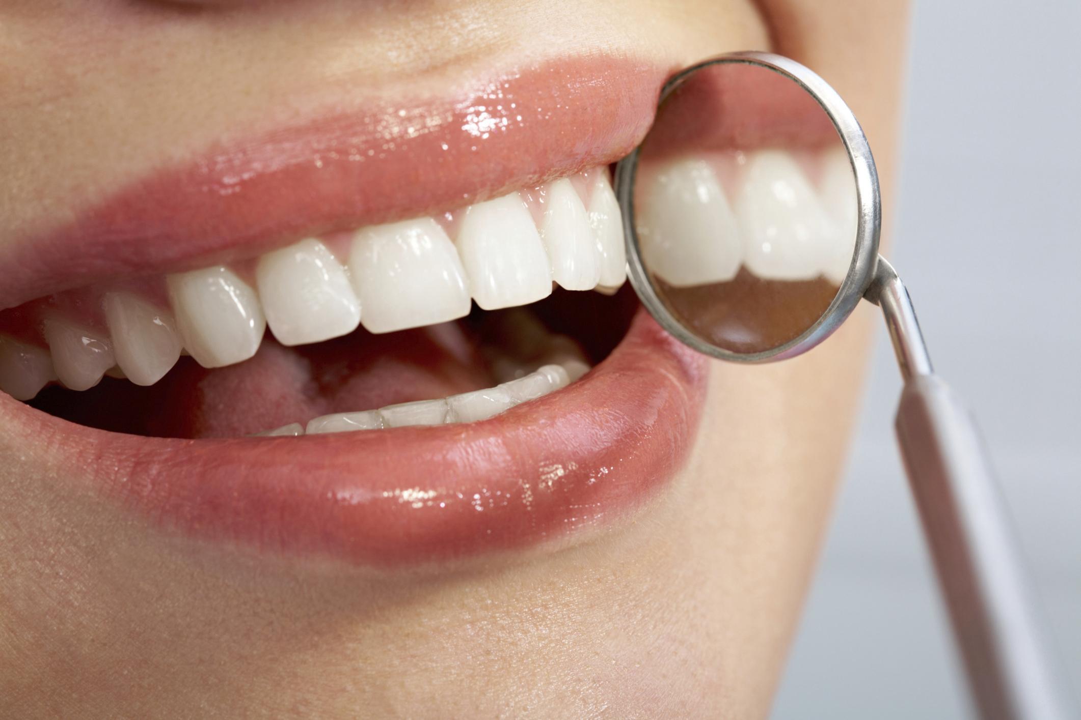 Dicas Para Proteger Nossos Dentes no Natal