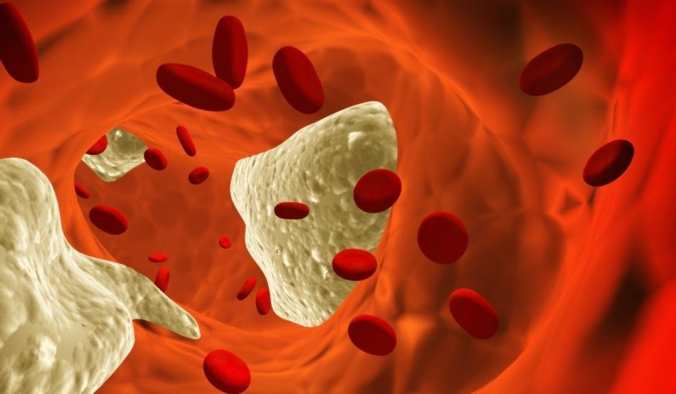 Colesterol Alto: Sintomas e Tratamento