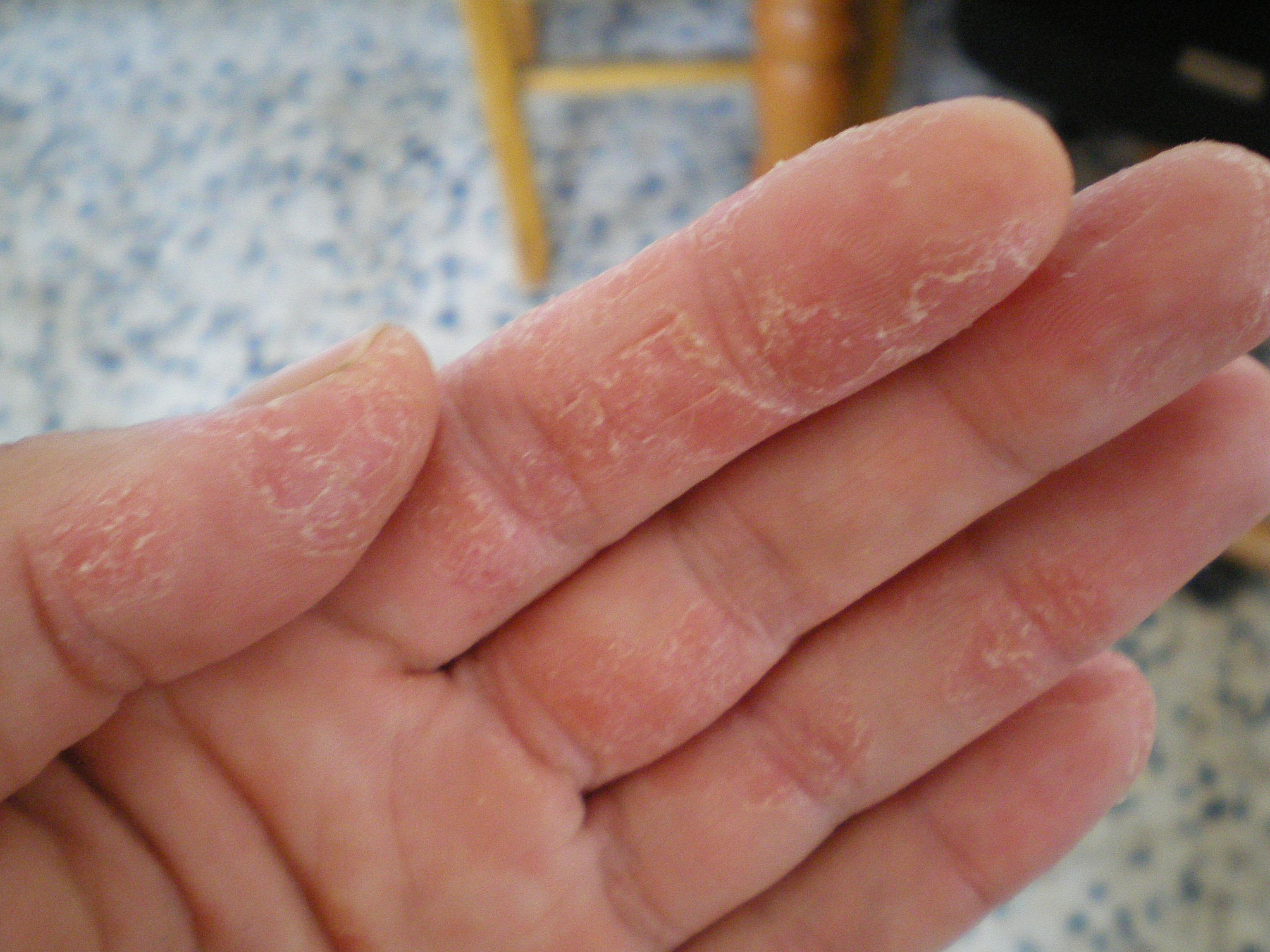 Eczema: Causas e Tratamento