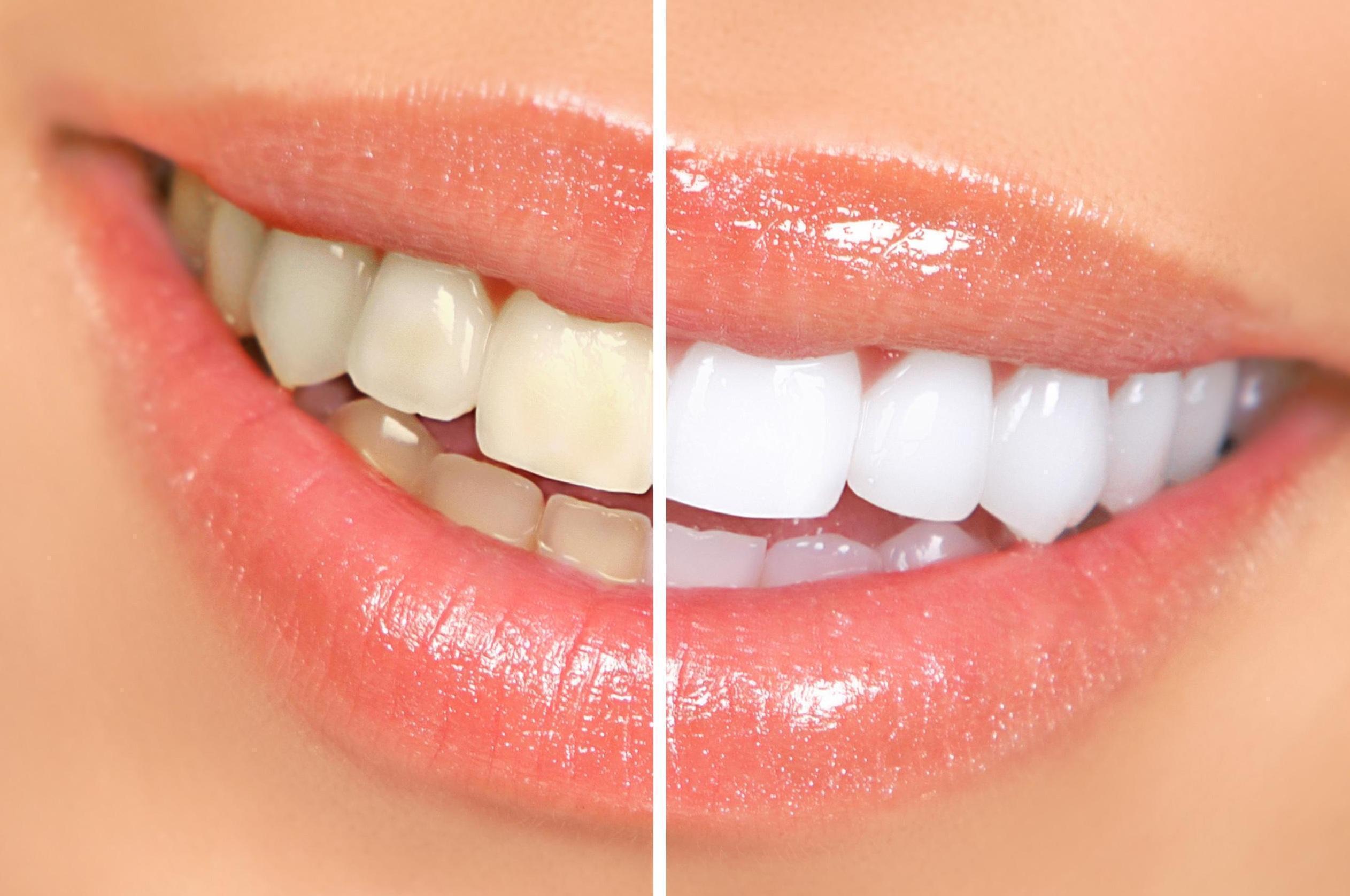 Remédios Caseiros Para Dentes Manchados Ou Amarelos