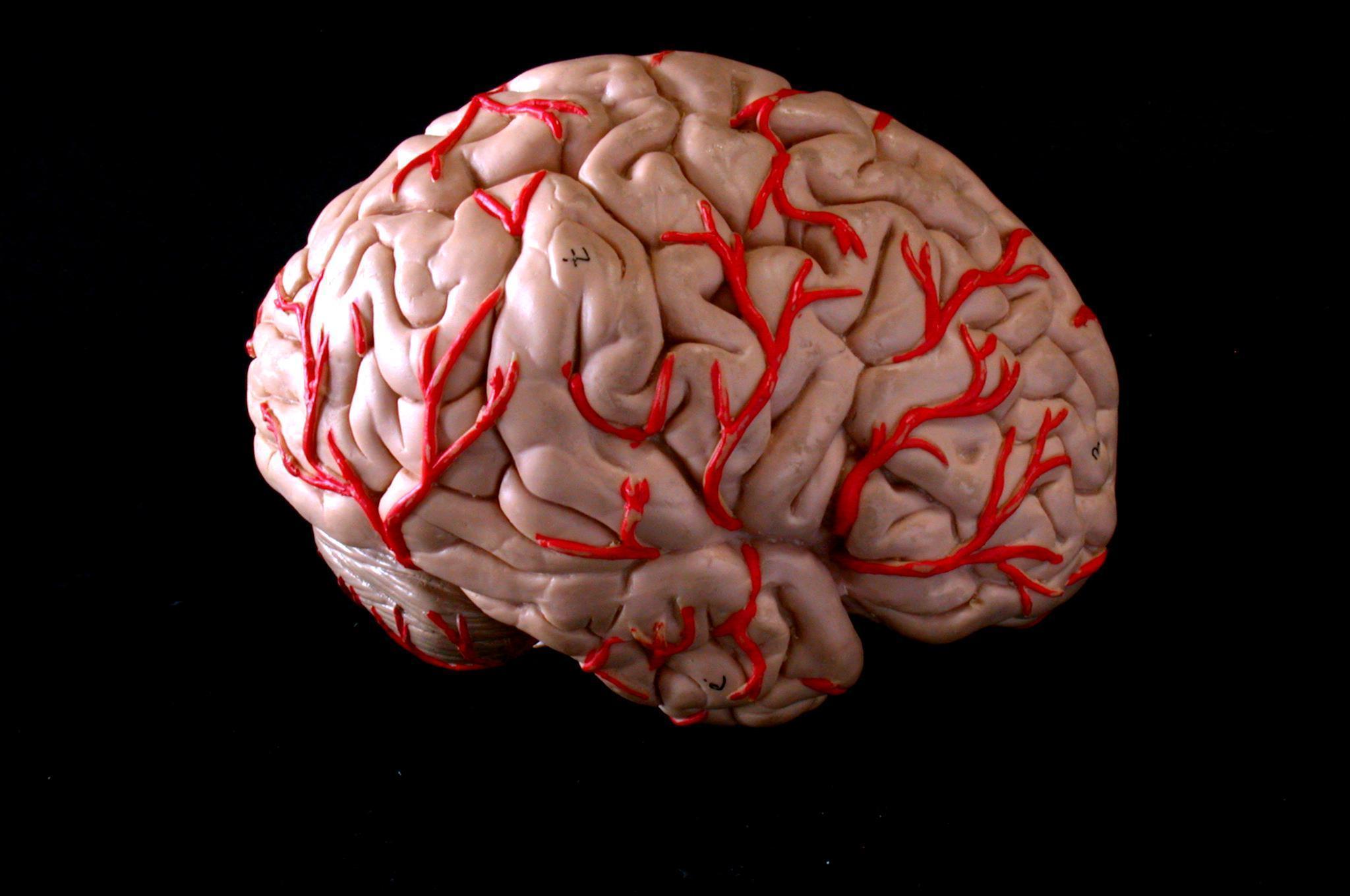 Remédios Caseiros Para Esclerose Múltipla