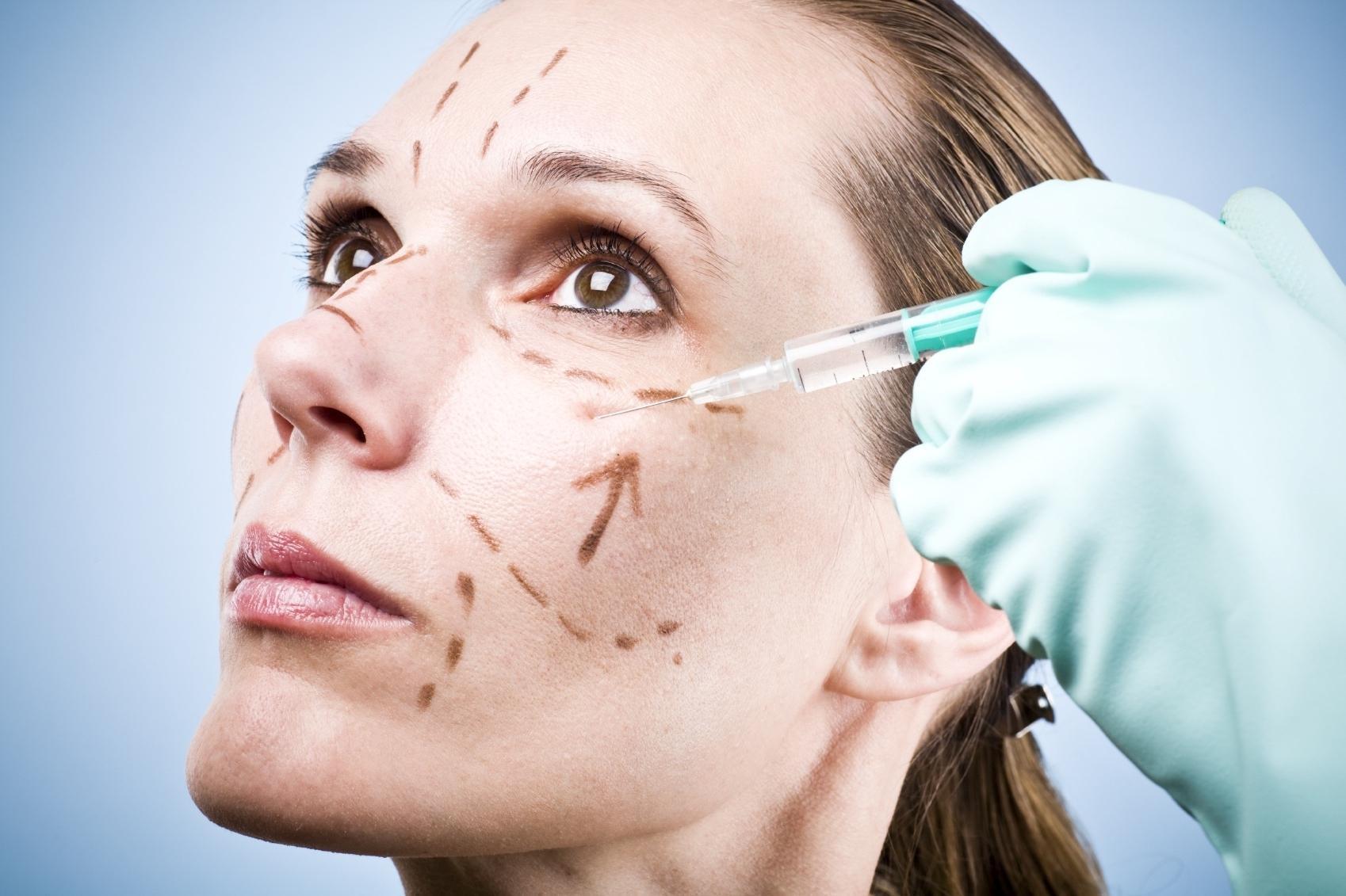 "Toxina Botulínica Tipo ""A"" | Botox: Uma Vitória Sobre As Rugas"