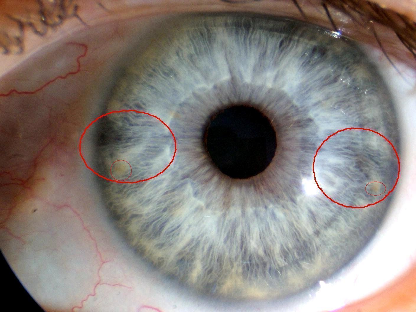 Iridologia – Diagnostico de Doenças Através dos olhos