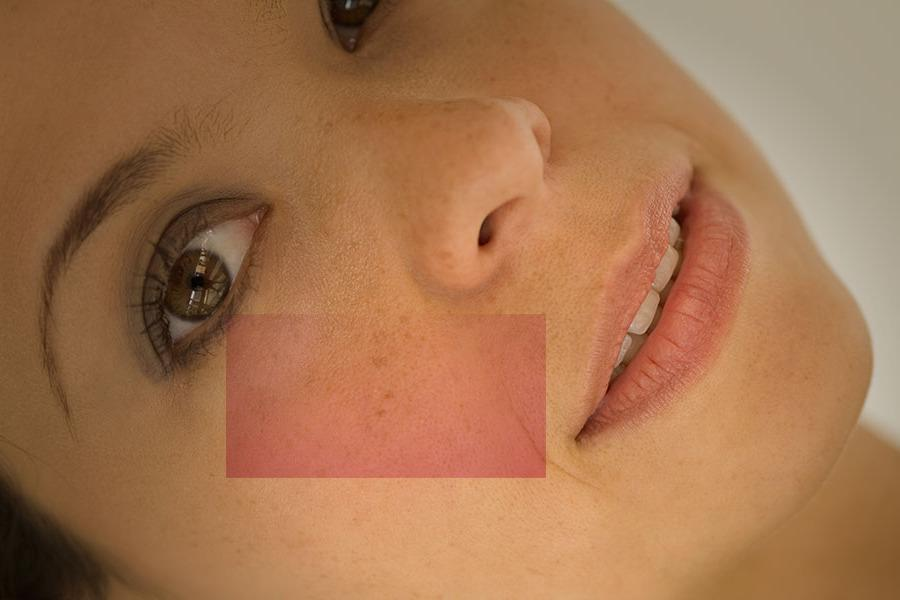 Manchas no Rosto: Causas e Tratamentos Para Manchas no Rosto