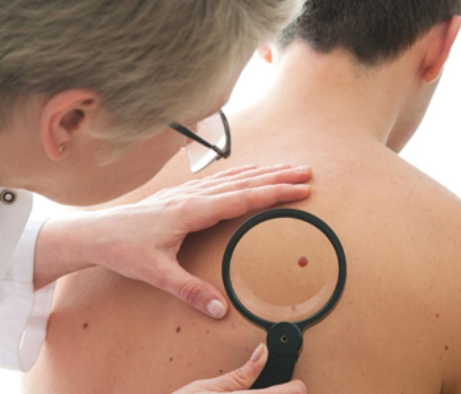 Viver nas Alturas Aumenta o Risco de Câncer de Pele