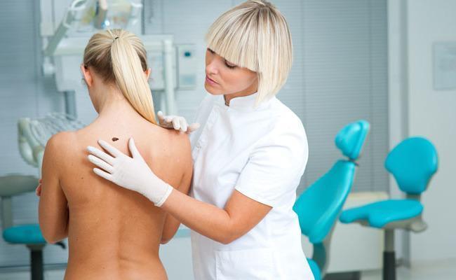 Conheça os Tipos de Câncer de Pele