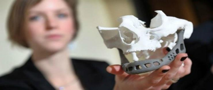 Nova Malha Artificial Para Reconstruir a Mandíbula