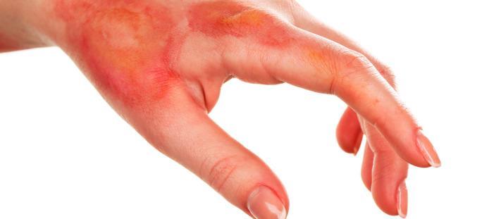 Como Tirar Cicatrizes E Manchas De Queimaduras Com Remedios Caseiros