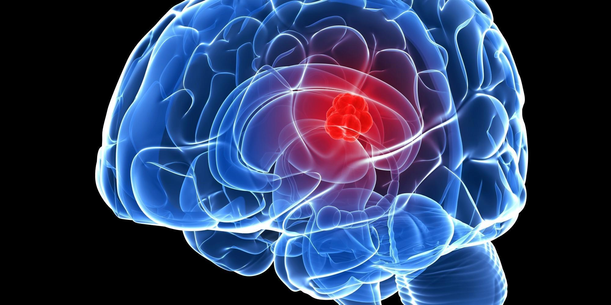 Câncer Cerebral: O que é, Sintomas e Tratamento