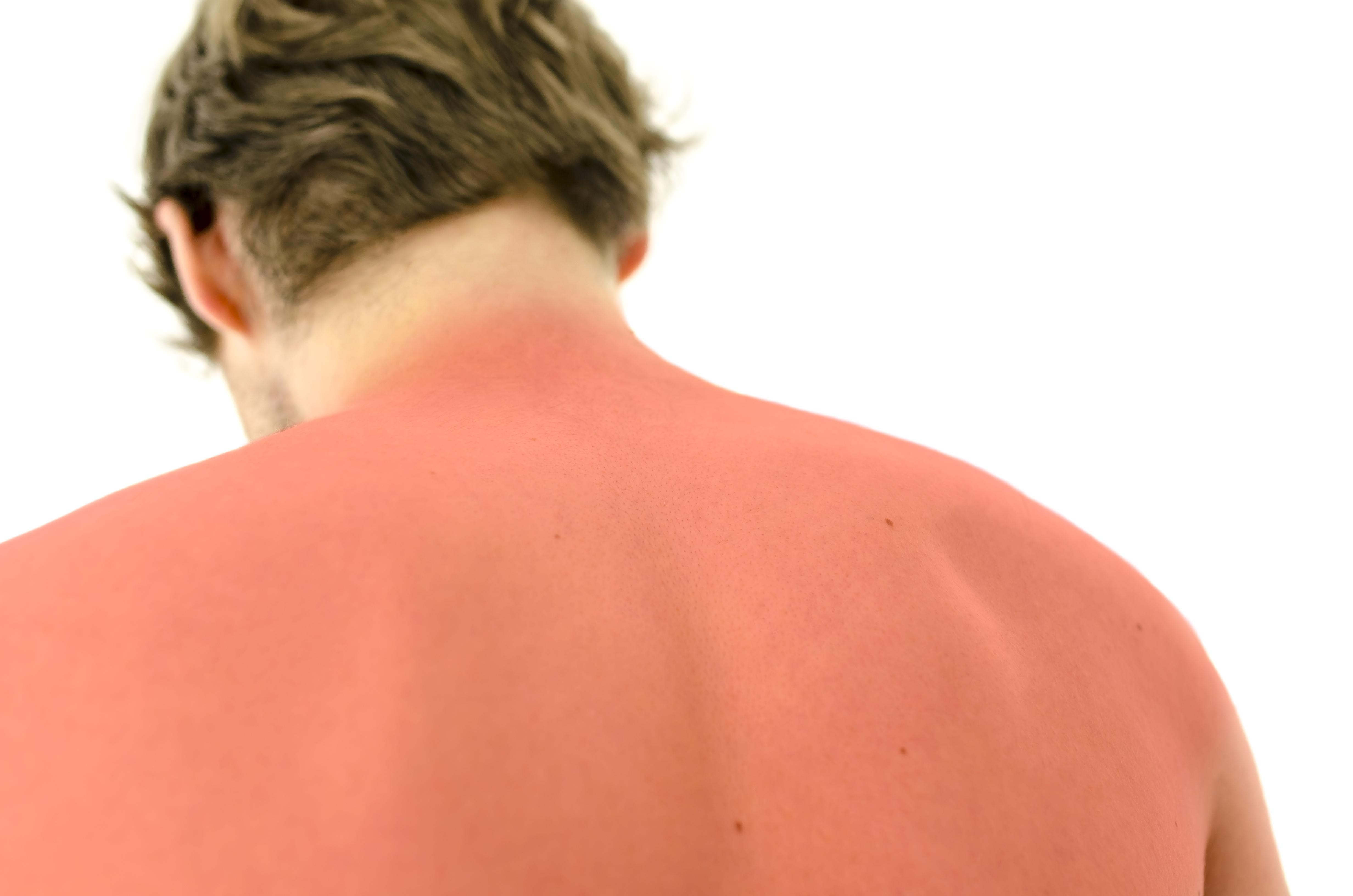 Como Tratar Queimaduras Solares