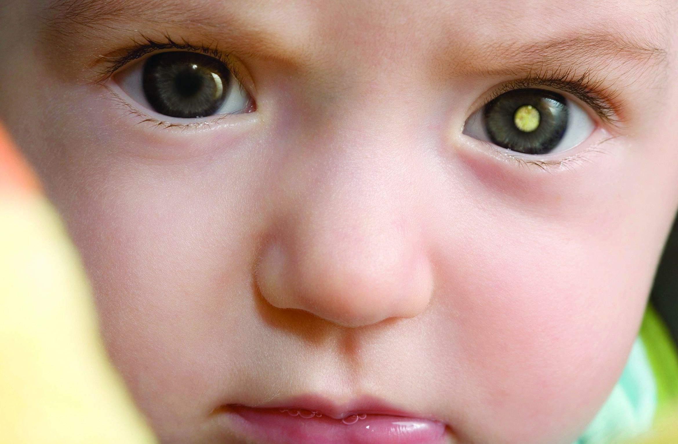 6 Sinais Para Detectar Retinoblastoma, O Câncer Que Se Origina na Retina