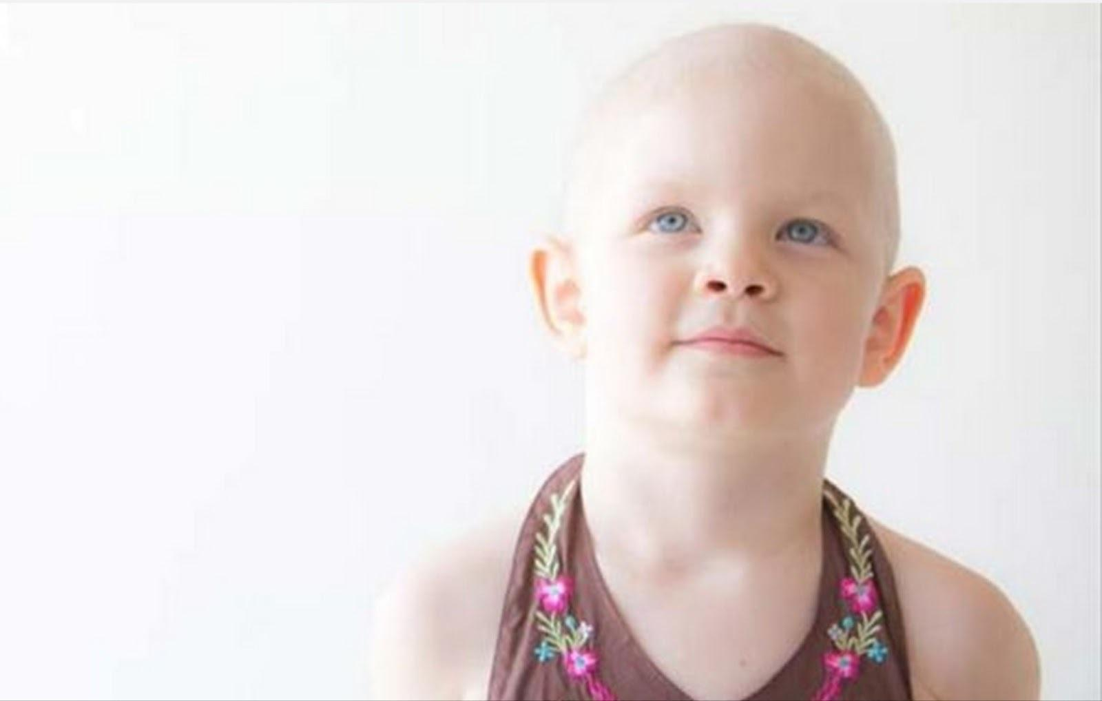 Leucemia: Sintomas e Tratamentos