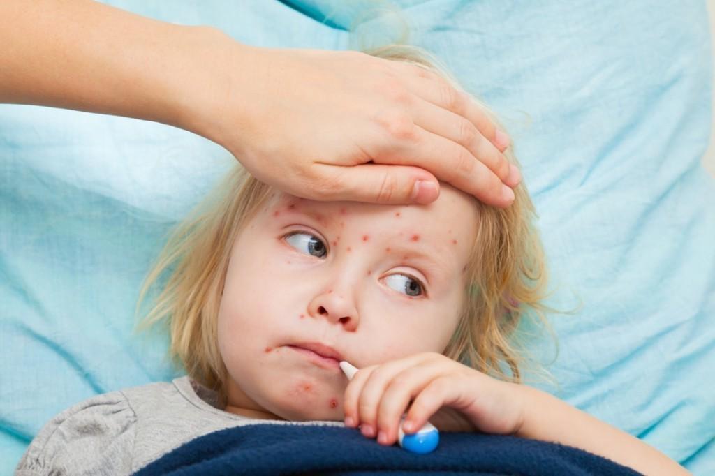 Saiba Quais As Doenças Mais Contagiosas da Infância