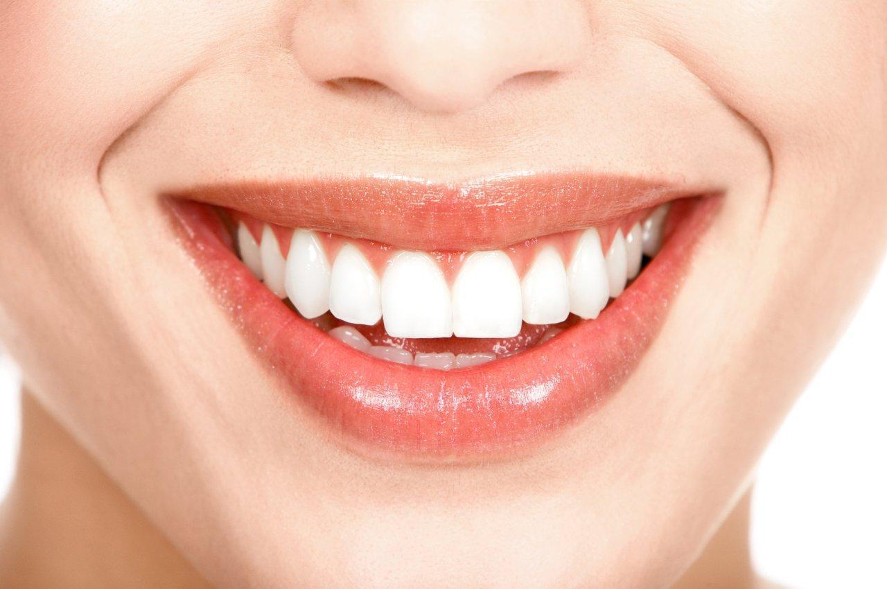 Brancorexia: A Obsessão Por Dentes Ultra-brancos