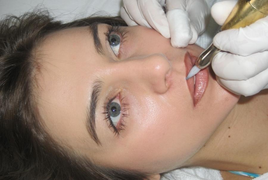 Cirurgia Para Lábios: Riscos e Benefícios